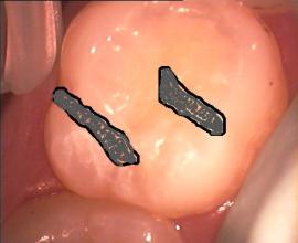 Zahn fiktiv mit Amalgam gefüllt - Bildmontage.