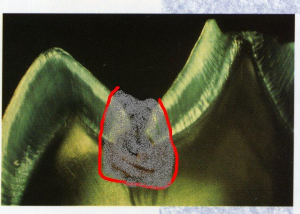 Ozontherapie, Zahnarztpraxis, Freudenstadt