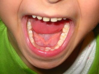 Zahnarzt, Kariesbehandlung, Freudenstadt