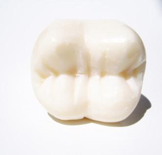 Fissurenversieglung, Zahnarztpraxis, Backenzahn